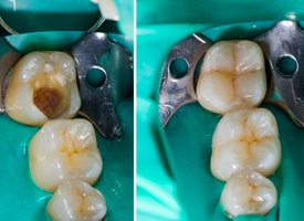 before and after tooth colored filling