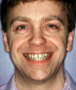 Man smiling before tooth alignment and teeth whitening