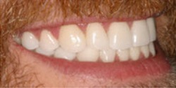 Closeup of man's smile after tooth alignment and teeth whitening
