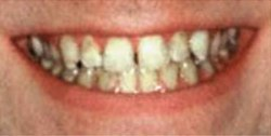 Closeup of man's smile before tooth alignment and teeth whitening