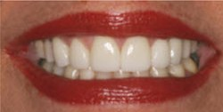 Closeup of woman's smile after gap between teeth is closed