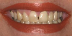 Closeup of woman's smile with gap between front teeth