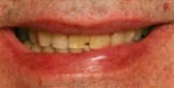 Closeup of man's smile with chipped tooth and yellow smile