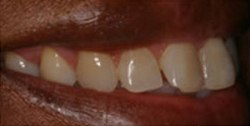 Closeup of woman's discolored smile