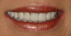 Closeup of woman's perfectly repaired and brightened smle