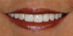 Closeup of older woman's brilliant white teeth