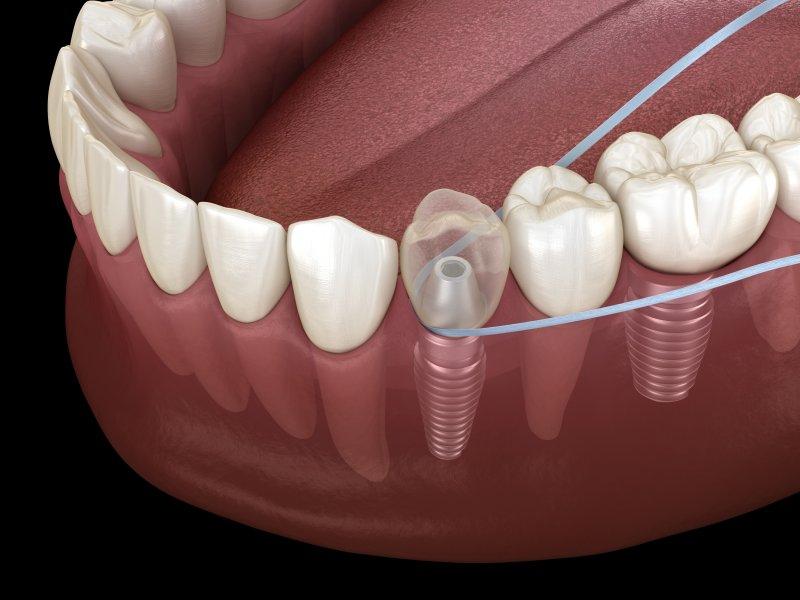 Flossing dental implants